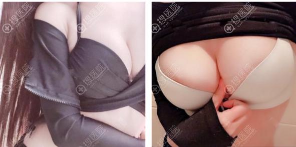 郑州菲林项中勇院长自体脂肪隆胸案例