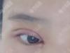 00后妹子找深圳龙华伊婉王力佳做了双眼皮开眼角变身大眼萌妹