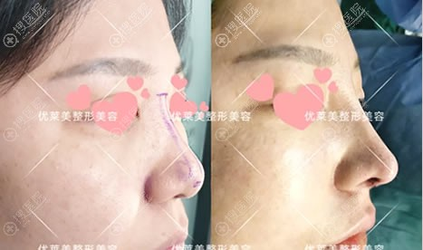 济南优莱美鼻综合隆鼻案例对比图
