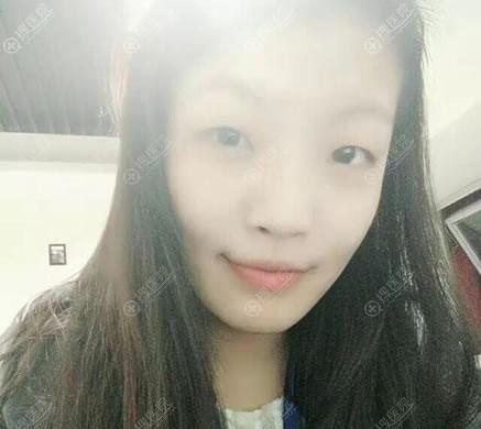 北京紫洁整形做双眼皮手术前