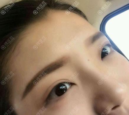 北京紫洁庄洪兴不开刀双眼皮案例