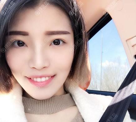 北京紫洁皮下速接双眼皮案例