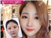 上海割双眼皮哪家好?公布上海十大双眼皮医院医生排名及价格表