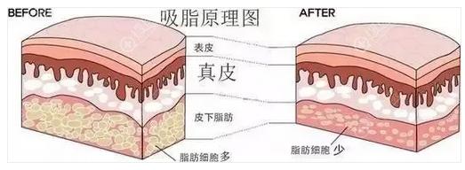 抽脂/吸脂手术原理图