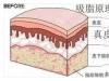 抽脂手术后皮肤会松弛吗?吸脂后皮肤松弛怎么办?
