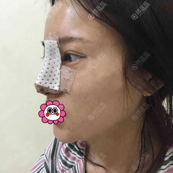 邵阳曹家黄远当鼻整形术后二天
