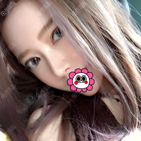 邵阳曹家黄远当鼻综合术后两个月案例