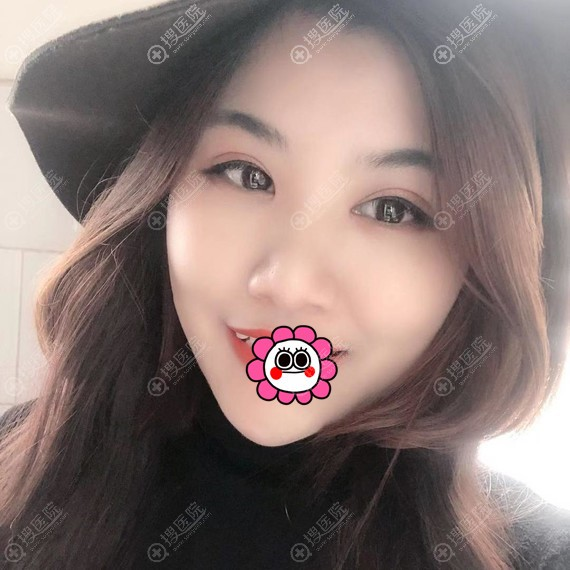 邵阳曹家黄远当双眼皮术后恢复一个月