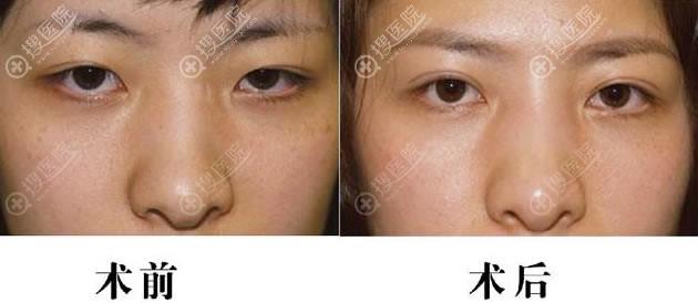 北京奥斯卡刘风卓双眼皮案例