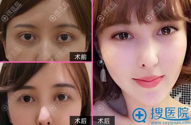 北京奥斯卡刘风卓双眼皮修复案例