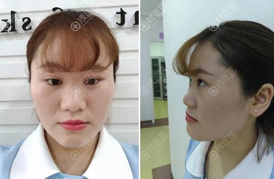贵州利美康六广门分院员工分享做初次隆鼻手术经历和术后效果图