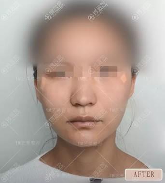 北京艺美自体脂肪填充泪沟案例