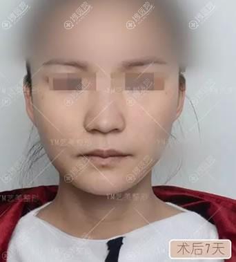 北京艺美脂肪填充祛除泪沟案例
