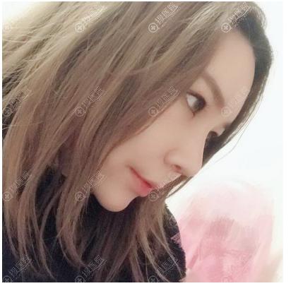 韩国黄在弘教授隆鼻术后7天
