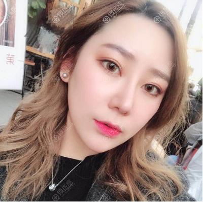 韩国黄在弘做的鼻综合隆鼻子手术案例