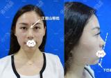 深圳富华李秀林3支玻尿酸隆鼻丰下巴改变脸部轮廓附术后对比图
