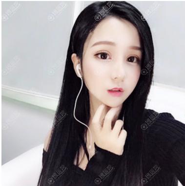 张林宏双眼皮修复和隆鼻手术案例