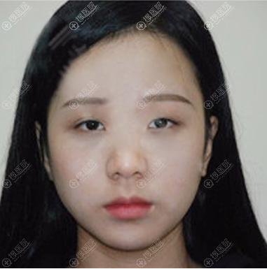 西安高一生双眼皮隆鼻术前照片
