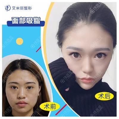 成都艾米丽刘叔阳面部吸脂案例