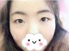 重庆yestar艺星王方鹏双眼皮开眼角术后我成了眼波似水的小可爱
