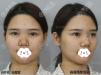 深圳阳光整形韩国医生朴在久做的膨体鼻综合术后效果超级适合我