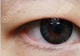开眼角会长回去吗?怎么样防止内/外眼角回缩?