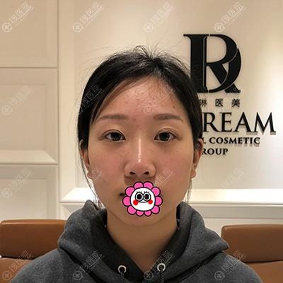 到杭州薇琳做鼻整形前的我