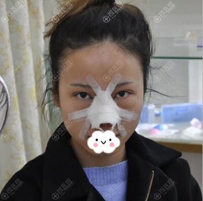 硅胶+耳软骨隆鼻术后即刻