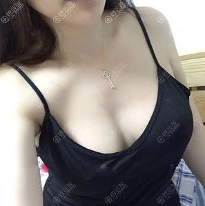 深圳南雅姚成红假体丰胸术后效果