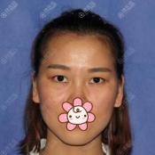 朋友告诉我深圳鹏程医院黄海侠做双眼皮好面诊后我就找他手术了