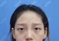 杭州割双眼皮哪个医生好?请看杭州格莱美王馨婉做的双眼皮案例