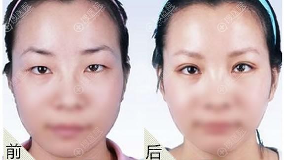 许昌丽娜整形吴俊涛做眼综合手术案例