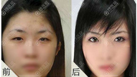 许昌丽娜杨志超割双眼皮案例