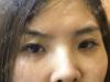 在深圳米兰柏羽找黎慧娟做的双眼皮恢复后被同事夸赞漂亮