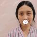 闫家峰在成都美立方整形美容医院给内双妹子做双眼皮效果怎么样