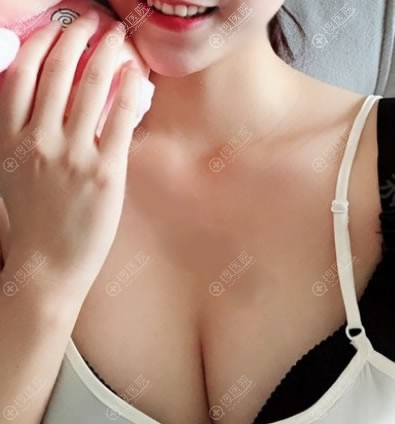 新疆黎美整形许黎吸脂和隆胸案例