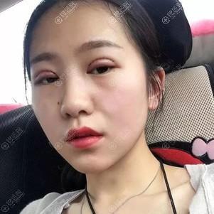 运城光子双眼皮术后5天