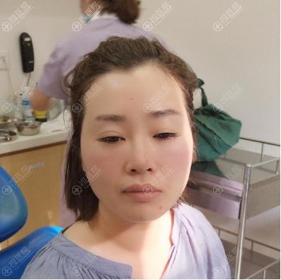 在杭州美莱做线雕提升术前照片