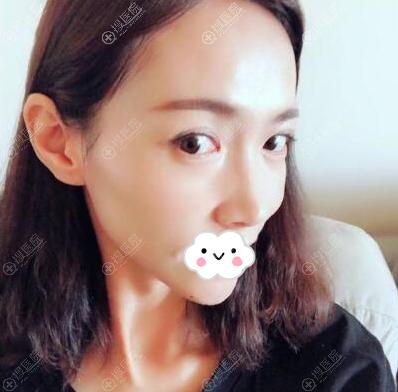 中山韩妃王晓亚硅胶垫下巴2个月恢复效果图