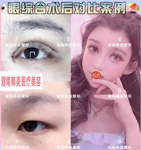 湖南韩美整形双眼皮开眼角案例