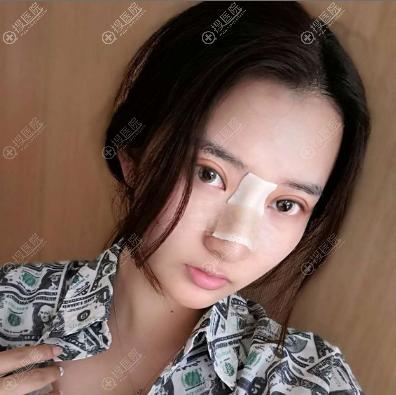 谭立文医生做的双眼皮隆鼻术后7天效果