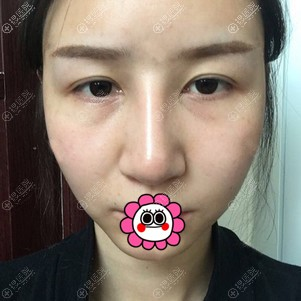 分享在孝感天妃找柳肖做的眼综合和鼻综合7天恢复经历和感受