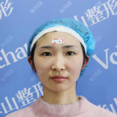 我和闺蜜找郑州华山医院胡斌做完双眼皮隆鼻后拿到张整形价格表