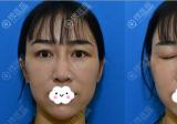 昆明王的整形王海沐给我做了双眼皮修复和全面部脂肪填充手术
