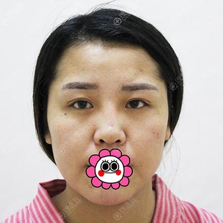 天津圣韩美做眼鼻综合整形前