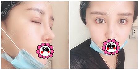 眼鼻综合面部脂肪填充术后半个月效果