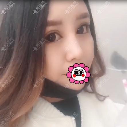天津圣韩美柴炀栋做鼻子好吗?
