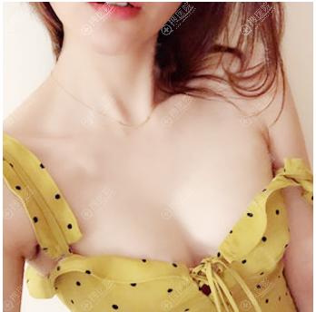 上海yestar整形唐毅医生做隆胸怎么样