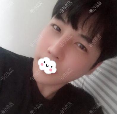 韩国NANA金亨俊双眼皮+鼻修复术后效果图