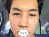 韩国NANA整形医院金亨俊院长双眼皮提肌+鼻修复手术案例效果图